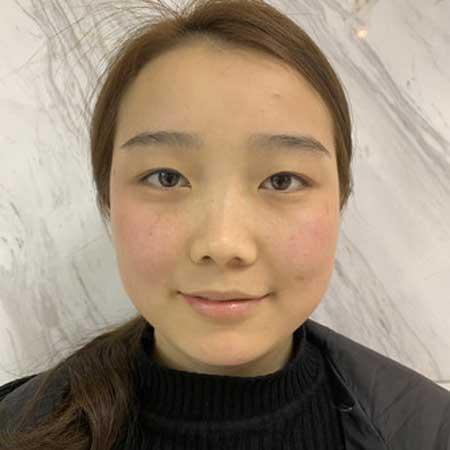 柚屿的鼻综合整形术前照