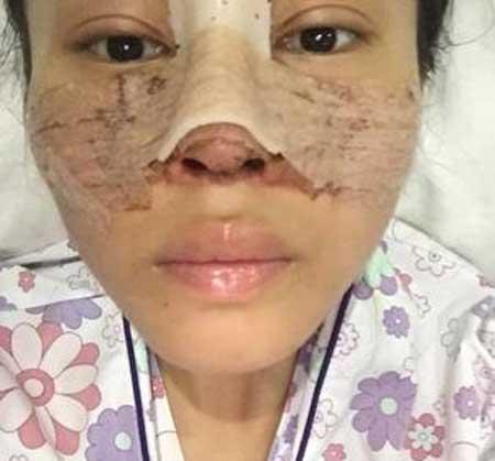 韩式双眼皮+鼻综合术后1天