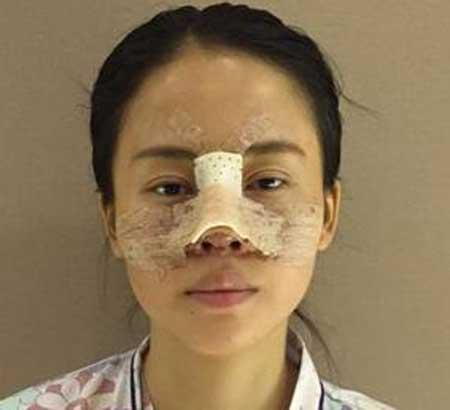 韩式双眼皮+鼻综合术后3天