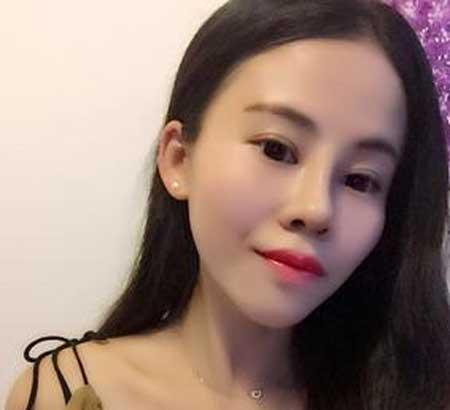 韩式双眼皮+鼻综合术后20天