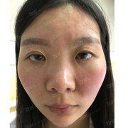 成都铜雀台杨建做隆鼻+自体脂肪丰太阳穴手术,90天真人案例分享