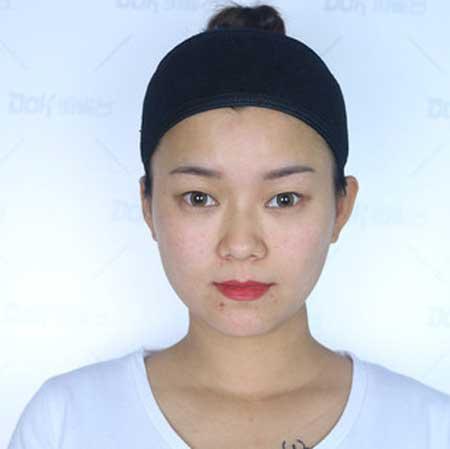 渡口无人的韩式双眼皮术前照