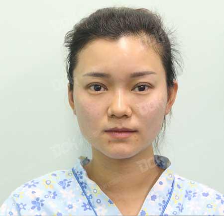 韩式全切双眼皮术后3天