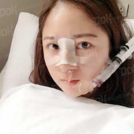 自体肋软骨隆鼻手术前