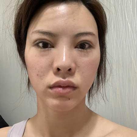 温良情境的假体隆鼻修复术前照