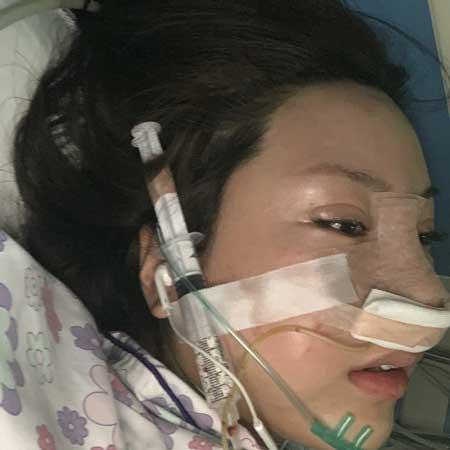 假体隆鼻修复术后2天