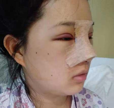 分享成都铜雀台江涛给我做双眼皮+隆鼻手术,3个月的恢复效果