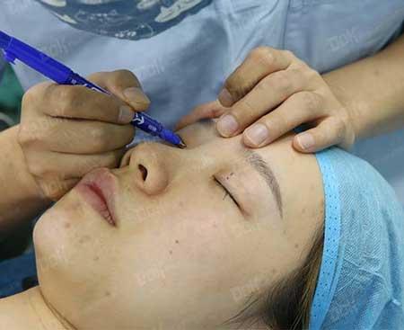 双眼皮修复手术前