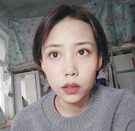 内切去眼袋手术术后一个月