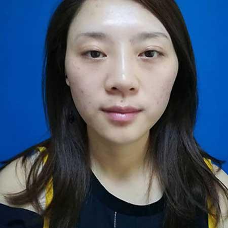 眉画犹思的自体脂肪面部填充术前照