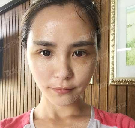 韩式双眼皮手术后
