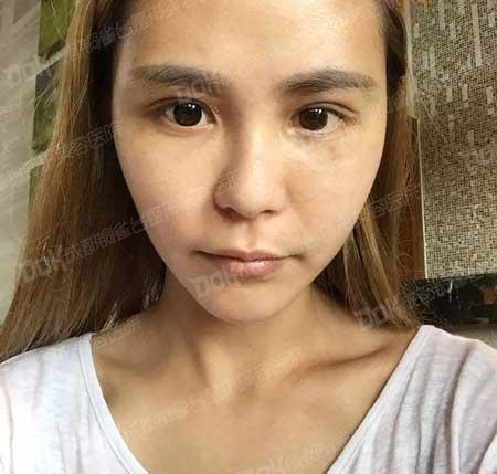 韩式双眼皮手术后10天