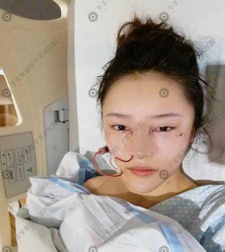 自体脂肪面部填充术后3天
