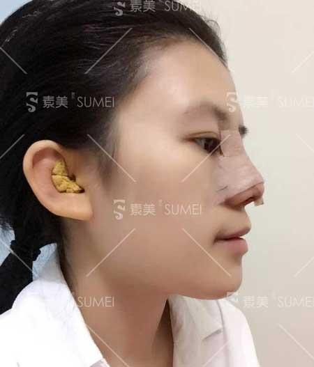 鼻综合整形手术前