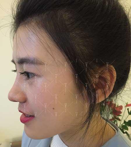 鼻综合整形手术后30天