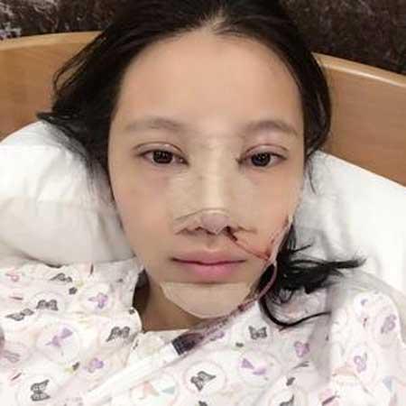 膨体假体隆鼻手术前