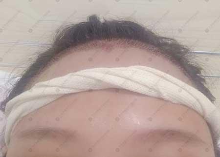 发际线种植手术后