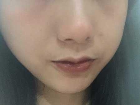 厚唇改薄手术后10天