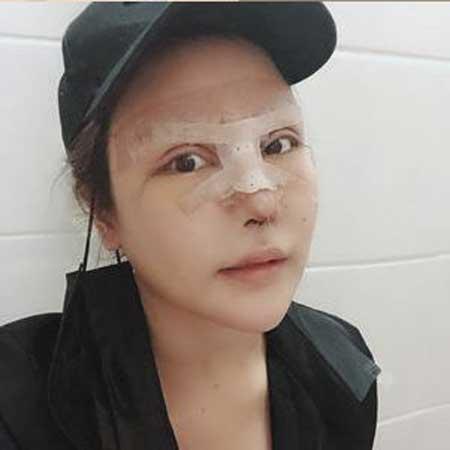 假体隆鼻手术后