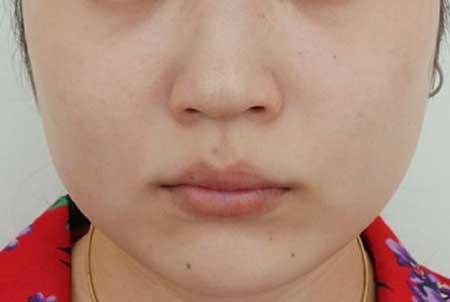 激光祛斑手术后40天