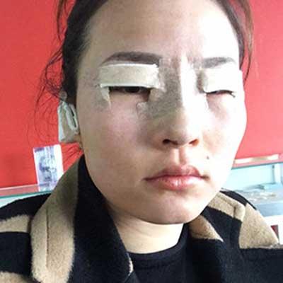 硅胶隆鼻术后1天