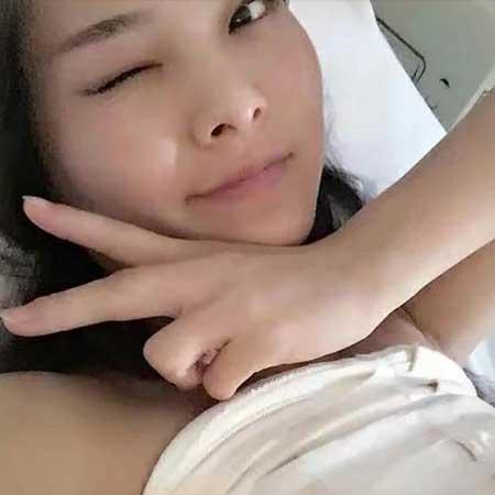 西安美莱杨帆做假体隆胸手术后