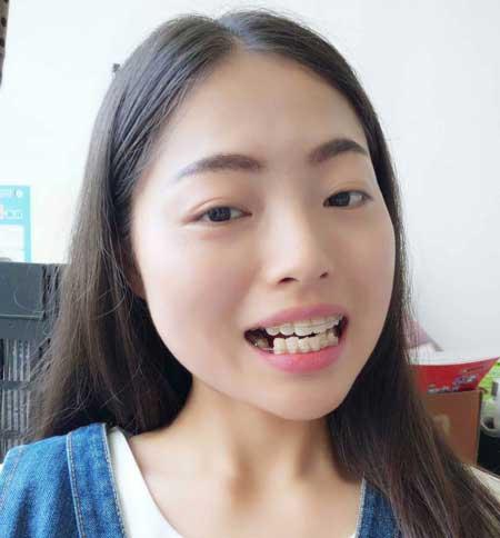 重庆华美吴承琼做自锁托槽牙齿矫正案例