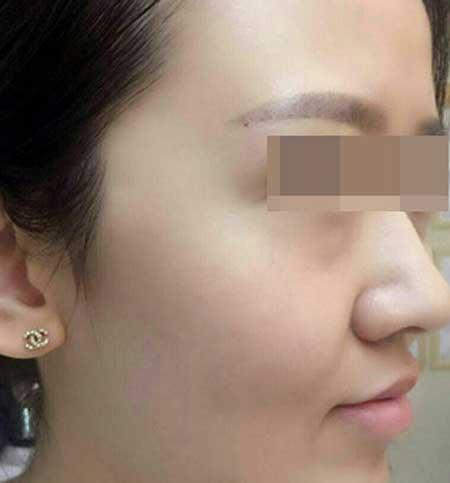 重庆华美邵雅娟做激光去红血丝手术后半个月