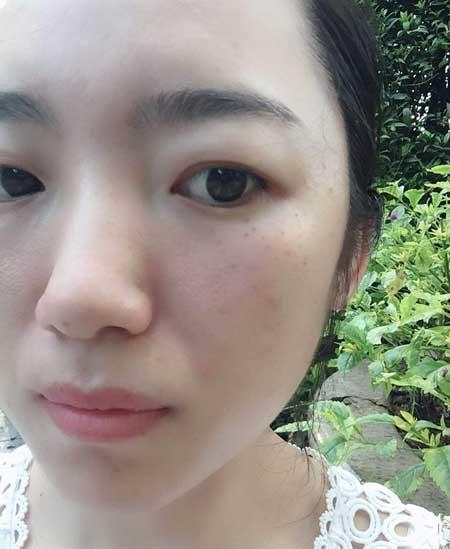 重庆华美邵雅娟做的光子嫩肤手术后