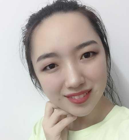 重庆华美邵雅娟做的光子嫩肤手术后10天