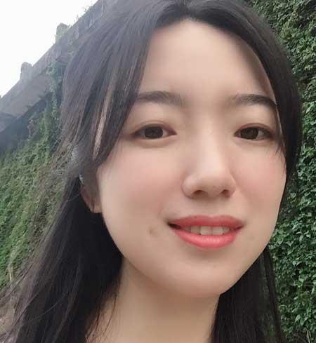 重庆华美邵雅娟做的光子嫩肤手术后15天