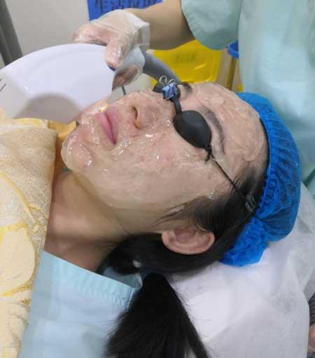 重庆华美邵雅娟做的光子嫩肤手术后40天