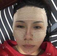 杨加富医生做眼袋和双眼皮怎么样?附个人简介+案例分享