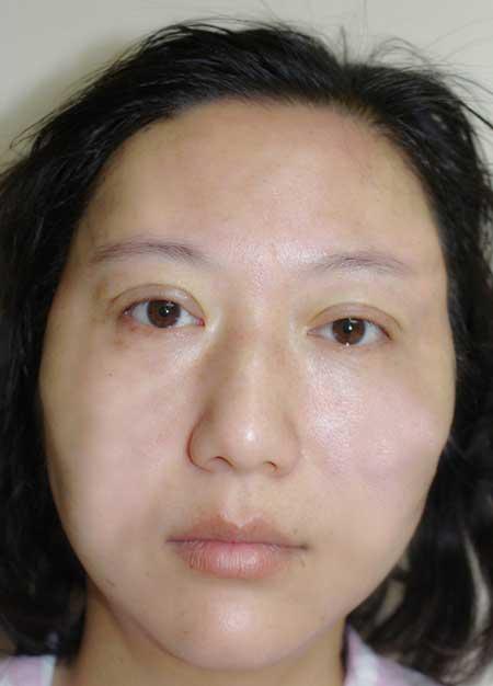 找八大处王佳琦做了线雕面部提升手术后