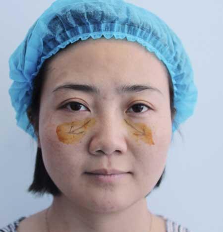找八大处邓晓明做内切去眼袋手术后