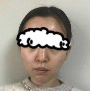 范飞做鼻子怎么样?看看范飞医生的简介和隆鼻案例就知道了