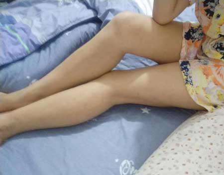 上海九院蒋朝华给我做的冷冻溶脂瘦大腿手术