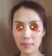 上海九院周双白医生做鼻子怎么样?附医生简介+案例分享