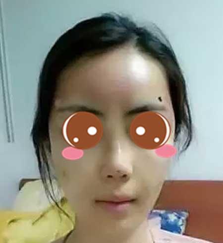 在上海九院做玻尿酸隆鼻+自体脂肪面部填充手术后