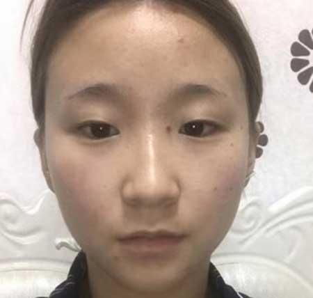 张姣姣医生给我做的全切双眼皮手术前
