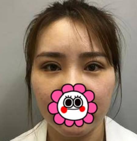 一纸荒年的双眼皮修复术前照