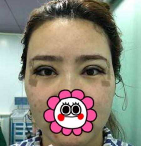 找杭州格莱美郑小红做双眼皮修复手术时