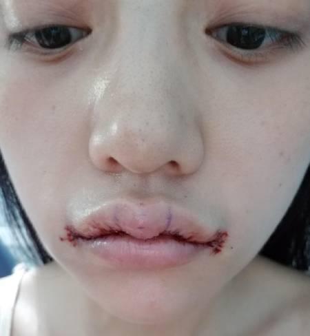 找杭州维多利亚整形医院的柳兆峰做的M唇+嘴角上扬手术后