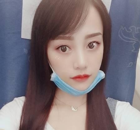 找杭州维多利亚整形医院的柳兆峰做的M唇+嘴角上扬手术后15天