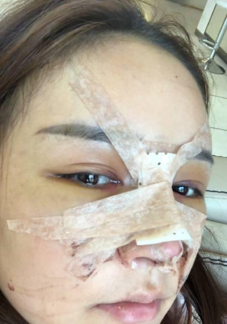 找杭州瑞丽刘波做鼻综合整形手术后
