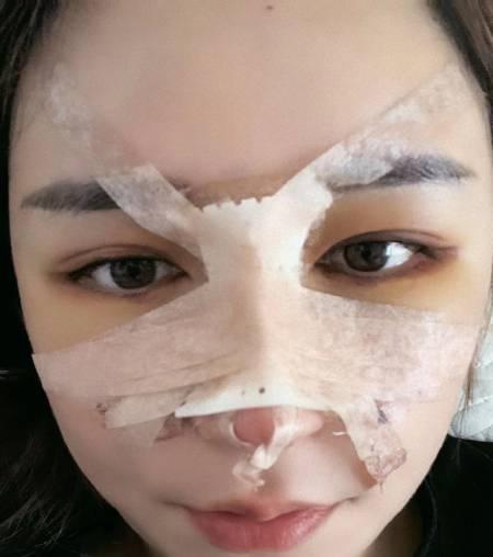 找杭州瑞丽刘波做鼻综合整形手术后7天