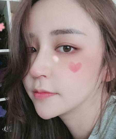 找杭州瑞丽刘波做鼻综合整形手术后18天