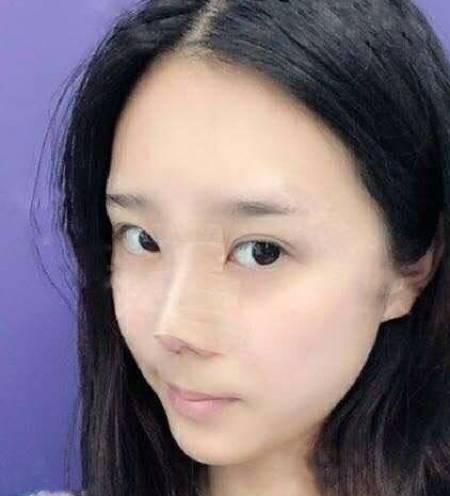 塌鼻子的我在华山连天美找盛飞做了鼻综合整形手术,整张脸看起来立体了不少