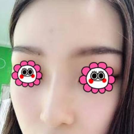 找成都艾米丽刘志春做自体耳软骨隆鼻手术后20天