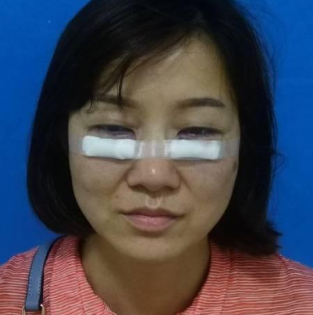 成都汉密尔顿激光去眼袋手术前